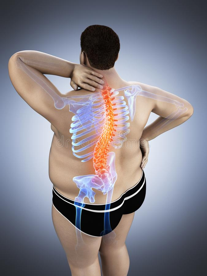 An obese mans painful back royalty free illustration