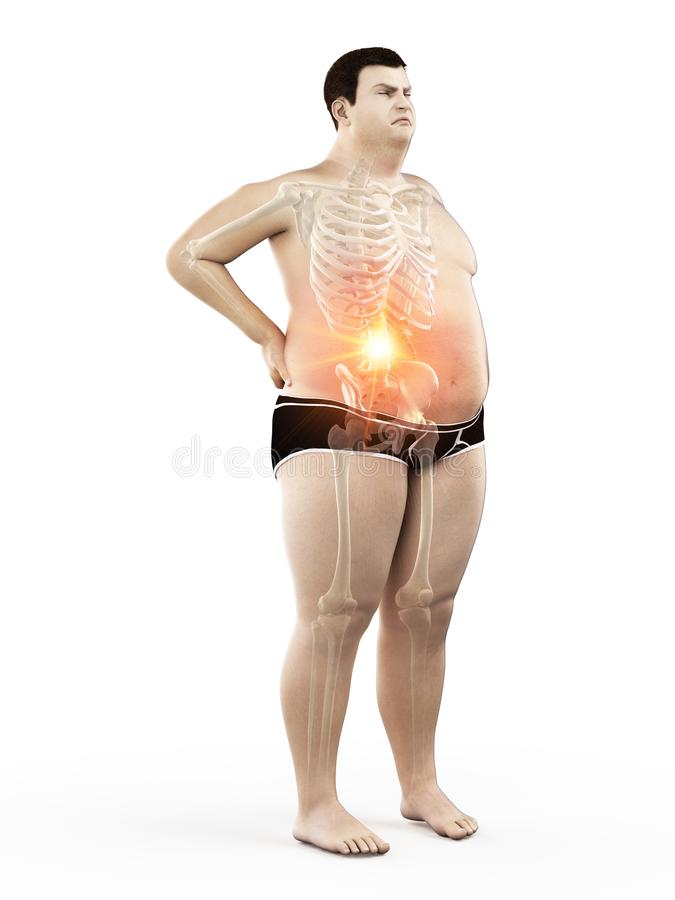 An obese mans painful back. 3d rendered medically accurate illustration of an obese mans painful back stock illustration