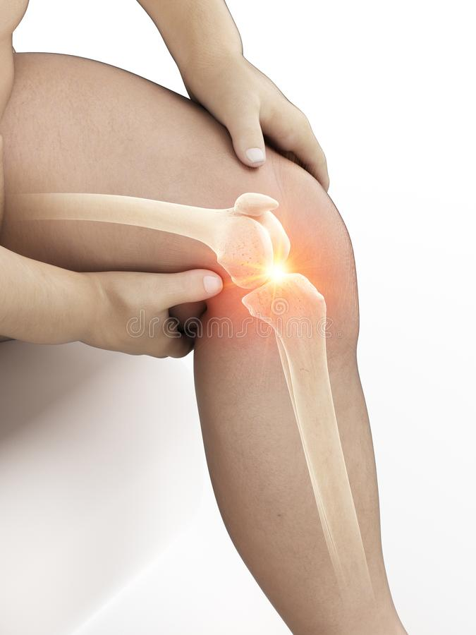 An obese mans painful knee. 3d rendered medically accurate illustration of an obese mans painful knee stock illustration