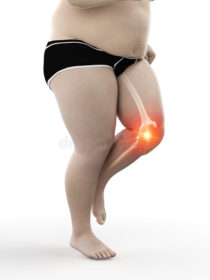 an obese runners painful knee royalty free illustration