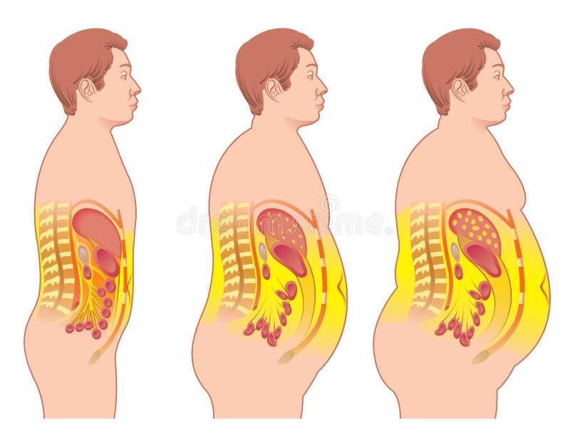 Obesidade ilustração royalty free