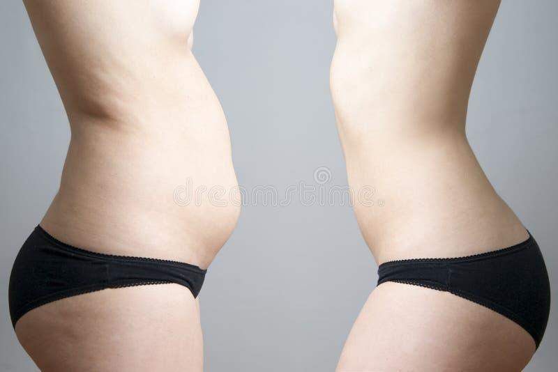 Obesidade antes em seguida