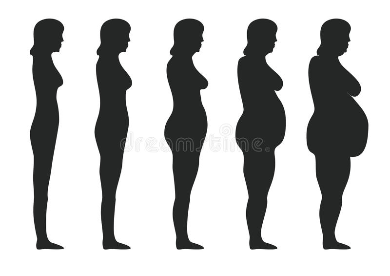 Obesity. Five stages of obesity women