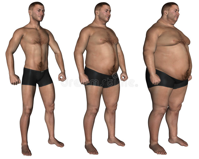 Obesity stock illustration
