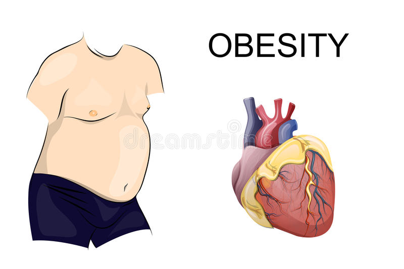 Obesity. body and heart. A fat body. Obesity heart disease royalty free illustration