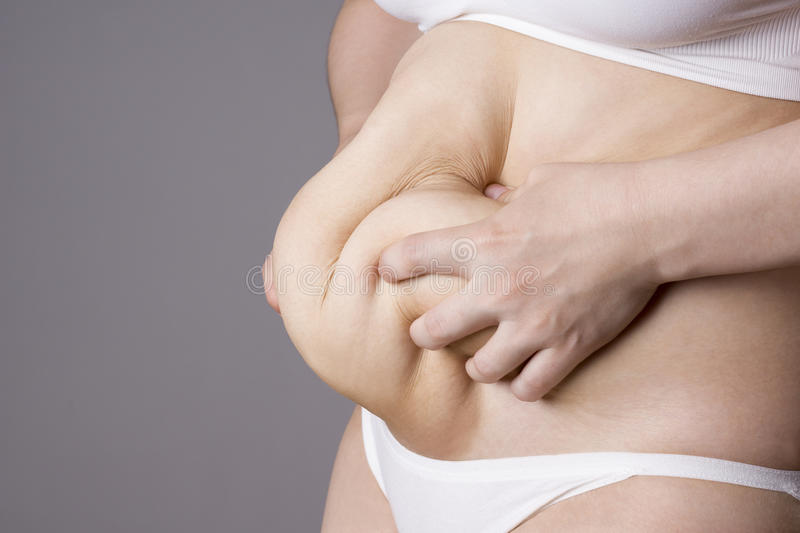 Obesity female body, fat woman belly close up stock photo