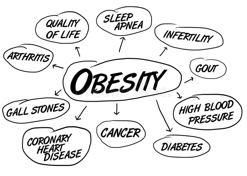 Obesity health conditions. Flow chart indicating the medical complications caused by people being overweight or obese, such as cancer, arthritis, diabetes and stock illustration