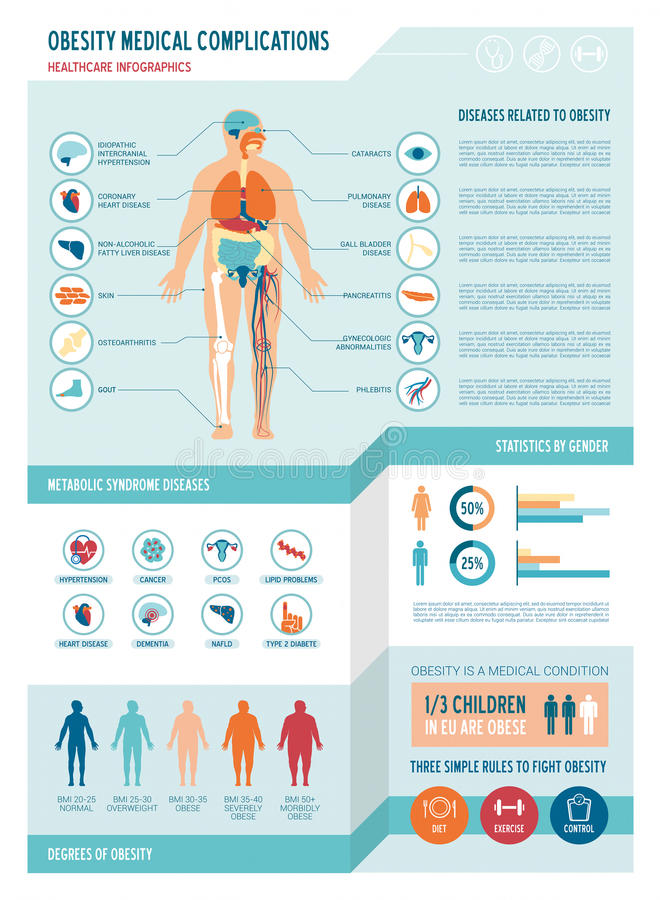 Obesity infographics stock illustration