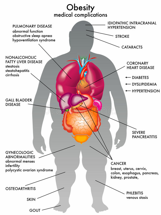 Obesity. Medical illustration of the consequences of obesity