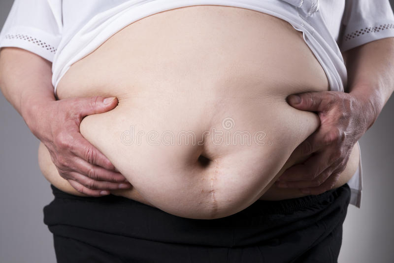 Obesity woman body, fat female belly with a scar from abdominal surgery close up. On gray background stock photos
