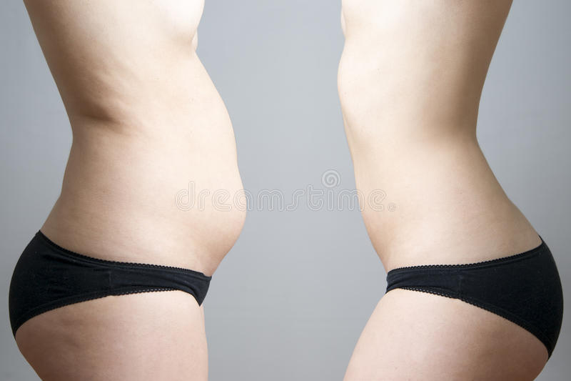 Obesity before after. Young woman's body on gray background stock photo