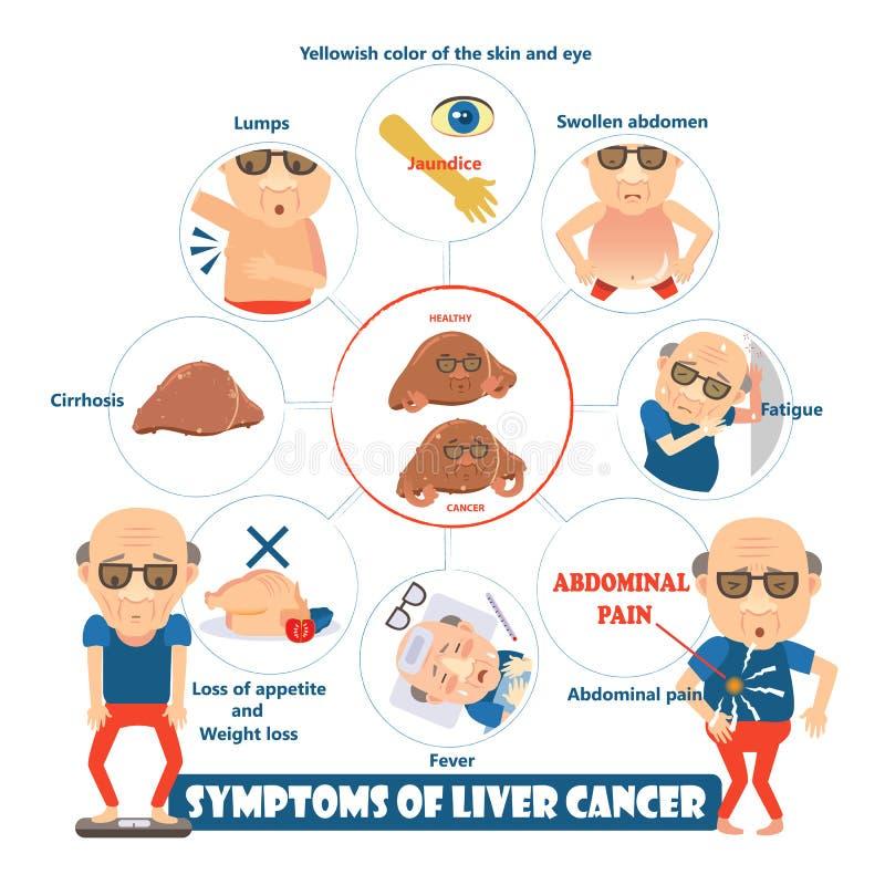 Objawy wątrobowy nowotwór ilustracja wektor