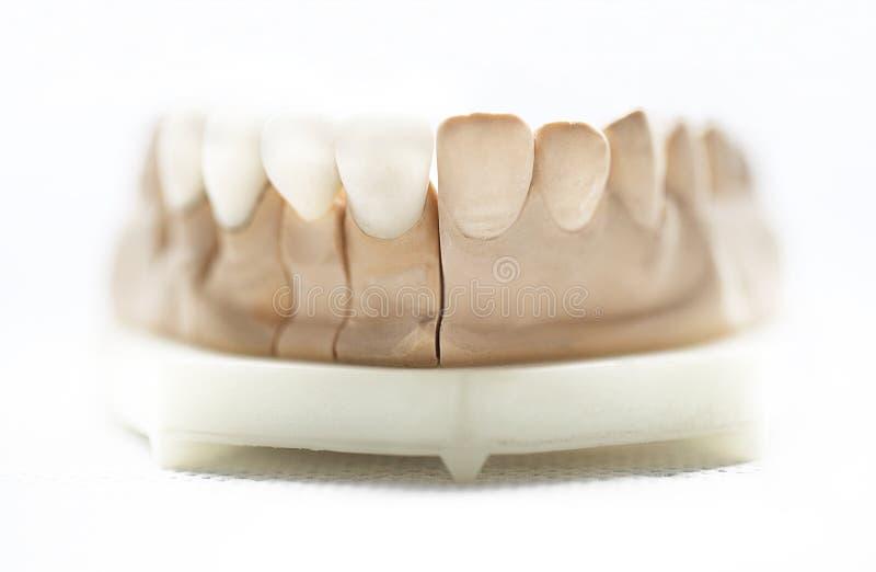 Objetos dentais do dentista foto de stock
