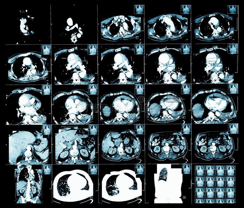 Obliczająca tomografia zdjęcia royalty free