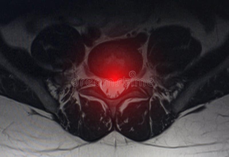 Obraz po zbadaniu obrazowania rezonansem magnetycznym Koncepcja badania kręgów, zmiany zwyrodnieniowe w dyskach międzykręgowych zdjęcie stock