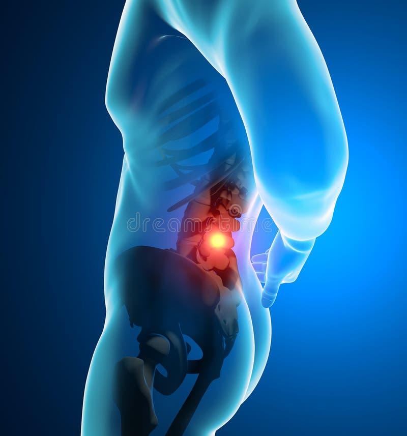 Obsługuje ból pleców, ból, promieniowanie rentgenowskie kościec, kręgosłup ilustracja wektor