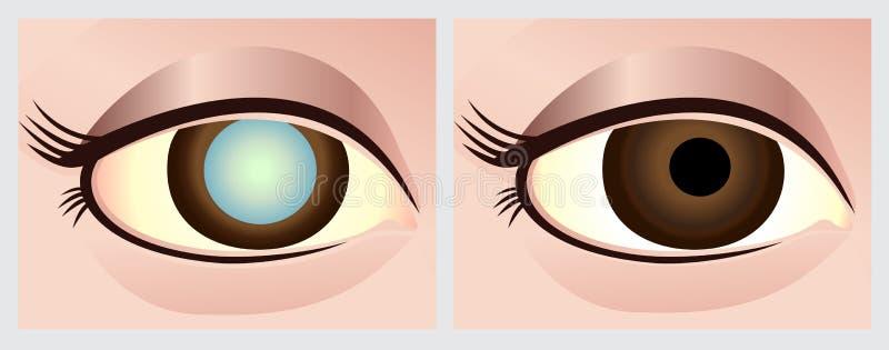 Occhio della cataratta illustrazione vettoriale