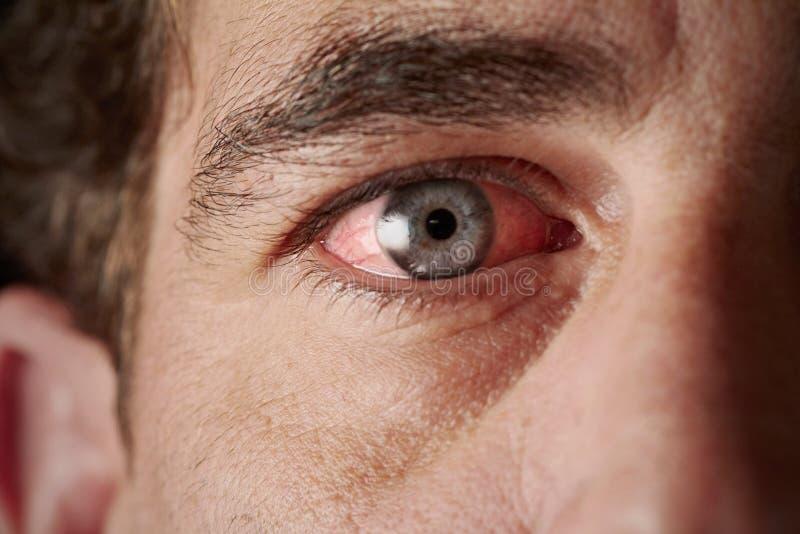 Occhio iniettato di sangue fotografia stock libera da diritti