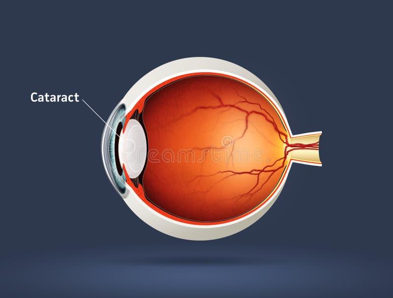 Occhio umano - cataratta illustrazione di stock