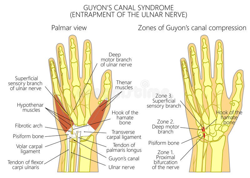 Occlusion du nerf cubital dans le poignet dans le cana de Guyon's illustration stock