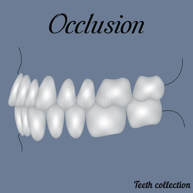Occlusion side view. Bite, closure of teeth - incisor, canine, premolar, molar upper and lower jaw. Vector illustration for print or design of the dental vector illustration