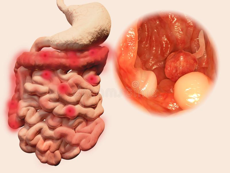 Occurrence of polyps in the gastrointestinal tract. Polyps are an abnormal growth of tissue. Colon polyps are not associated with symptons. There is a risk that vector illustration