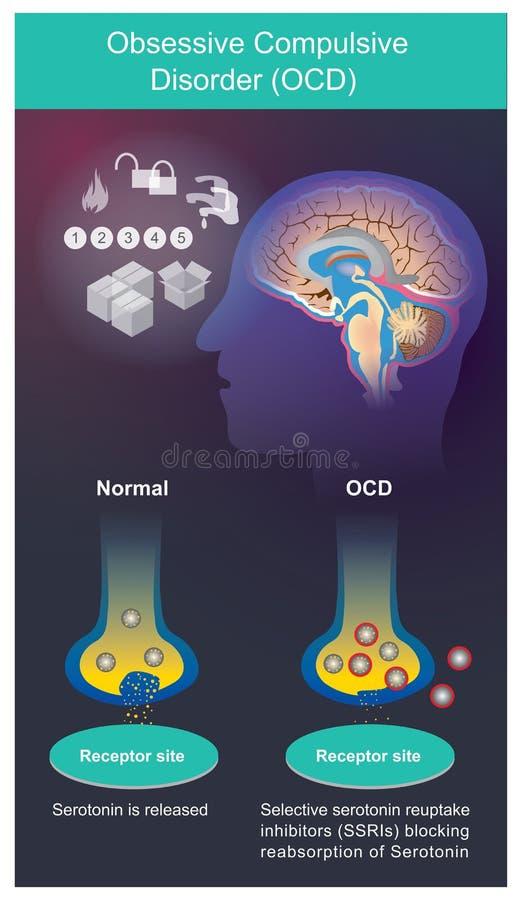 OCD Symptômes psychiatriques qui doivent vérifier des choses à plusieurs reprises illustration stock