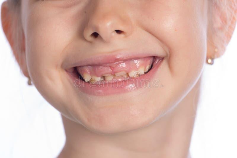 Odmienianie zęby zdjęcie royalty free