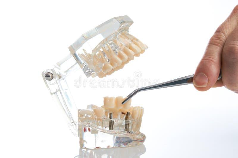 odontotecnico che dispone la protesi dentaria parziale fissa fotografia stock libera da diritti