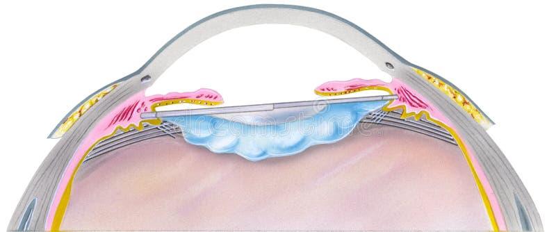 Oeil - étape 6 de chirurgie de cataracte illustration libre de droits