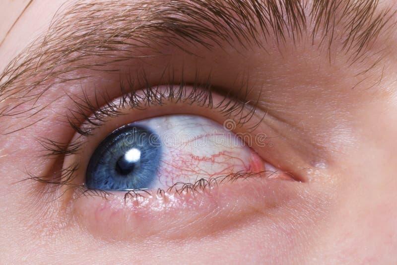 Oeil bleu d'hommes avec les vaisseaux sanguins rouges images libres de droits