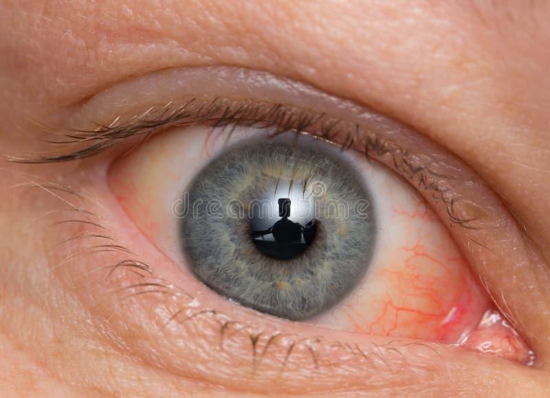 Oeil chronique de conjonctivite avec un iris et un pus rouges image stock