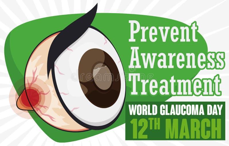 Oeil de bande dessinée favorisant la prévention, la conscience et le traitement dans le jour de glaucome, illustration de vecteur illustration de vecteur