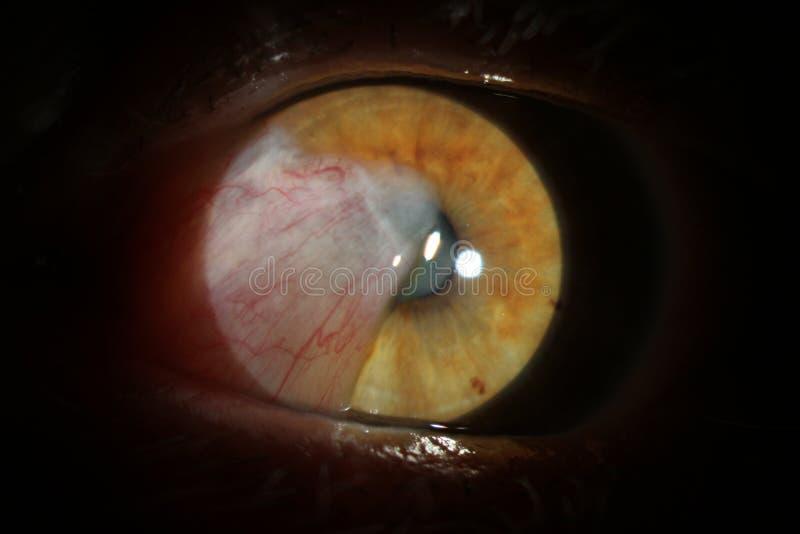 Oeil humain avec la cataracte L'enquête et l'essai de l'oeil nous financent de l'oeil humain La pathologie de l'oeil est cataract photographie stock
