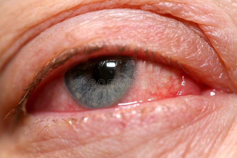 Oeil humain avec la conjonctivite photo libre de droits
