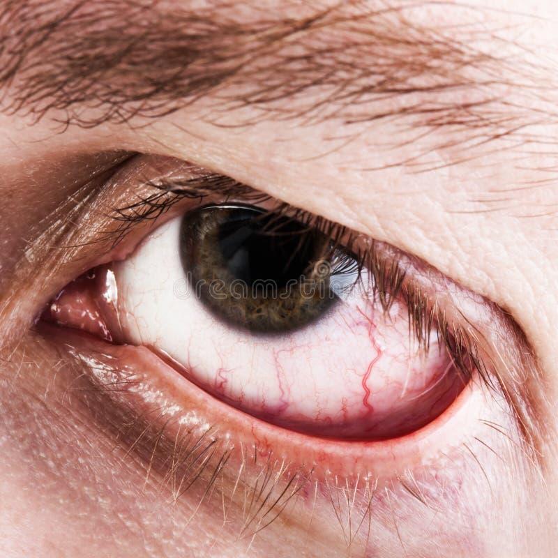 Oeil humain capillaire de sang photographie stock
