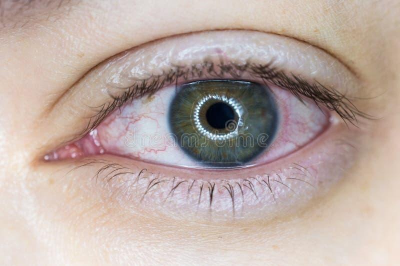 Oeil humain irrité par rouge photographie stock
