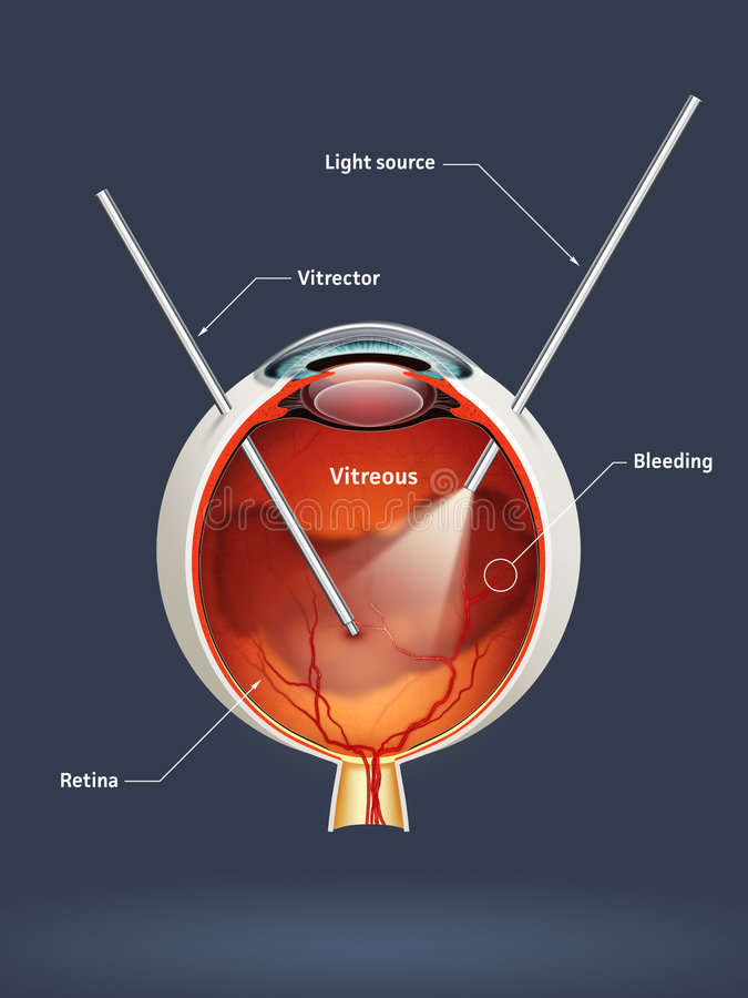 Oeil humain - vitrectomy illustration libre de droits