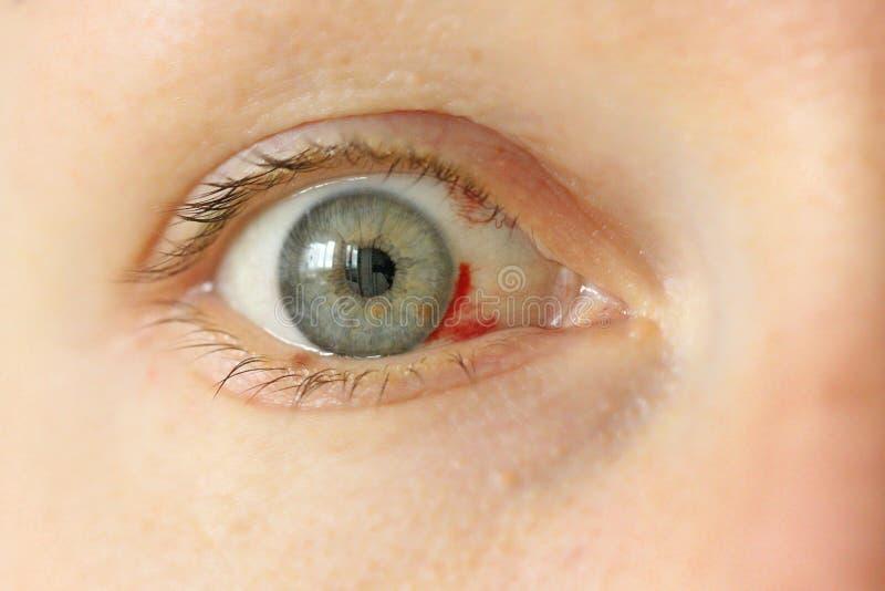 Oeil injecté de sang Femme avec le vaisseau sanguin d'éclat dans l'oeil Bl très rouge photos libres de droits