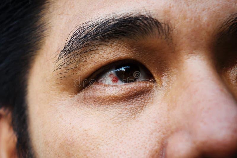 Oeil injecté de sang rouge photos stock