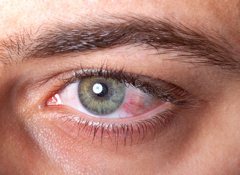 Oeil injecté de sang rouge irrité photographie stock libre de droits