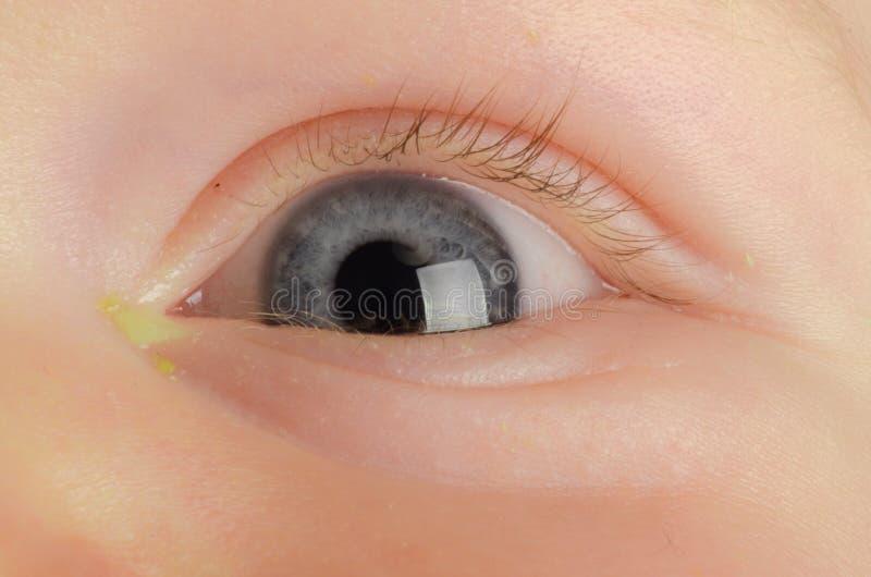 Oeil rose (conjonctivite) photo stock