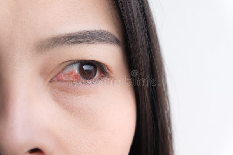 Oeil rouge Conjonctivite ou irritation des yeux sensibles photo libre de droits