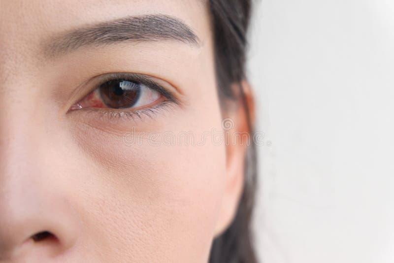Oeil rouge Conjonctivite ou irritation des yeux sensibles image libre de droits