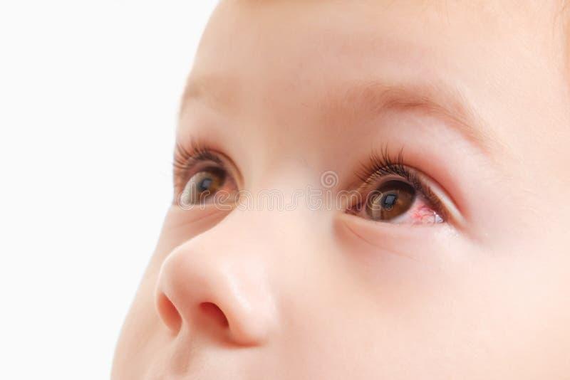 Oeil rouge de conjonctivite d'enfant avec l'infection, maladie photographie stock libre de droits