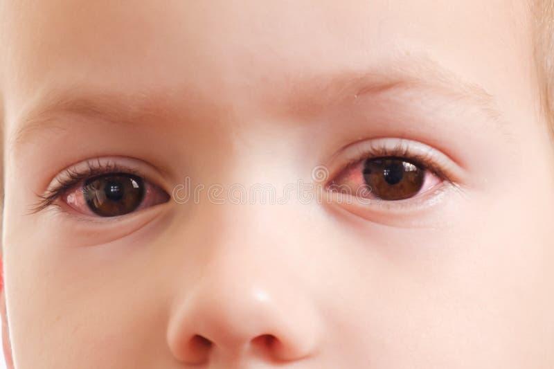 Oeil rouge de conjonctivite d'enfant avec l'infection, santé photos libres de droits