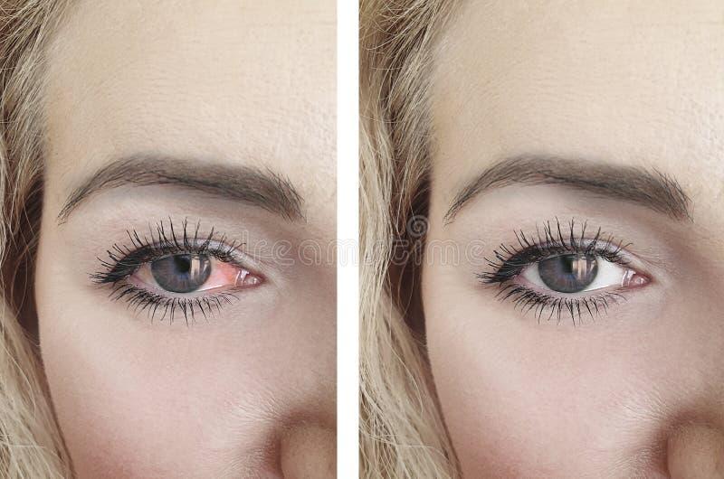 Oeil rouge de femme avant et après l'ophthalmologie de procédures de problème de conjonctivite images stock