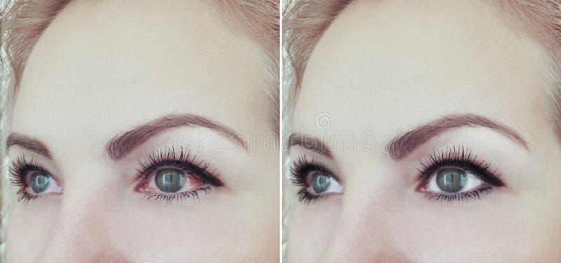 Oeil rouge de femme avant et après l'ophthalmologie de procédures de problème de conjonctivite de vision images libres de droits