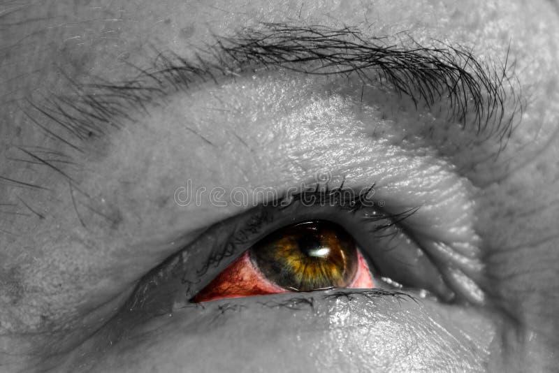 Oftalmia - oko choroba - Conjunctivitis - Różowy oko - krwisty ey obrazy royalty free