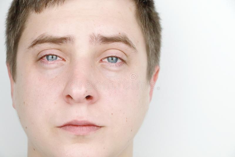 Oftalmologia, allergie, strappanti Ritratto di un uomo che sta gridando fotografia stock libera da diritti